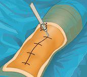 Hra - Virtual Knee Surgery